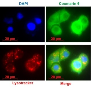 Endosomal escape of Herceptin®-conjugated PLGA-Phis-PEG NP